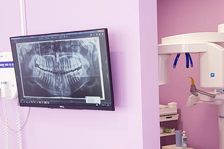 Pogled na rentgensko sliko ustne votline